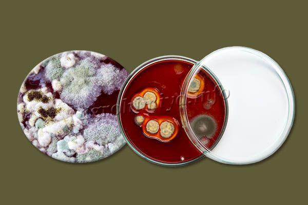 Алирин-Б уничтожает широкий спектр болезнетворных бактерий и спор грибков